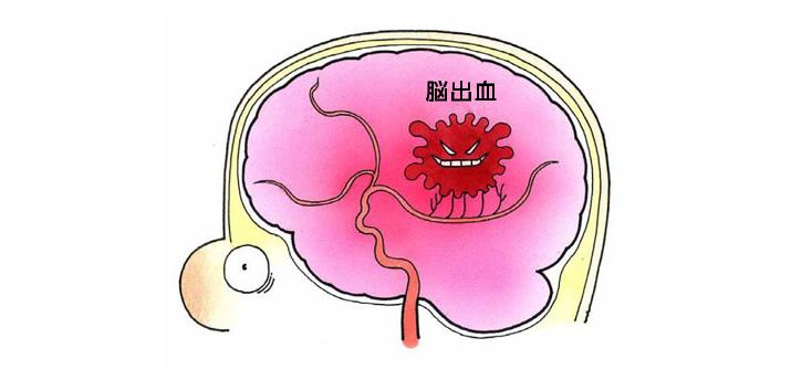 脳内出血 救急車を呼んで不安を感じたら、 救急車が来るまで安静にしていましょう。... 脳出血の