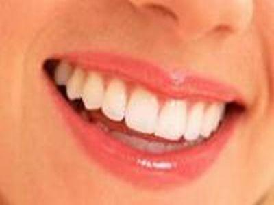 歯が生える夢