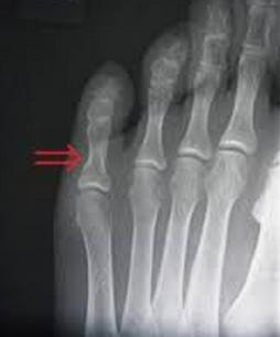 小指を角などにぶつける理由は脳に原因が!?骨折する場合も