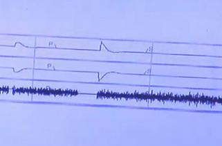 緊急地震速報で誤報が出るのはノイズが原因?