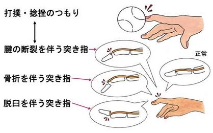 突き指の種類