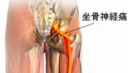 坐骨神経痛、原因、特徴