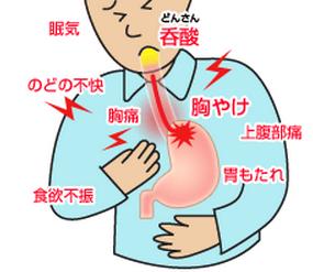 逆流性食道炎、症状、胸焼け