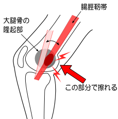 膝の痛み、ジョギング、原因、改善、ジョギング