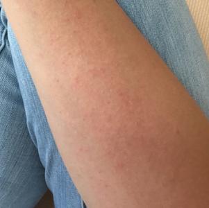 日光蕁麻疹,原因